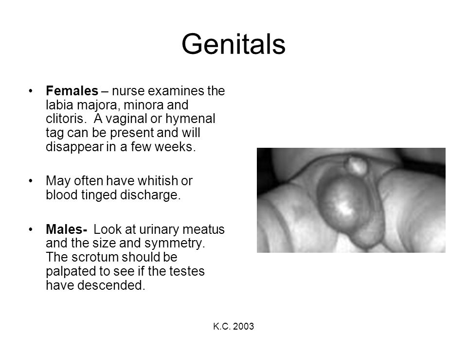 Genitals Females – nurse examines the labia majora, minora and clitoris. A vaginal or hymenal tag can be present and will disappear in a few weeks.
