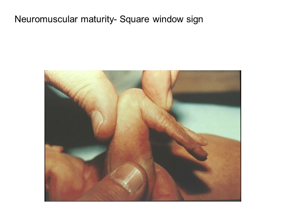 Neuromuscular maturity- Square window sign