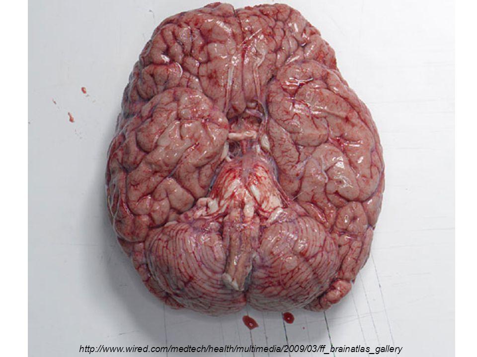 http://www.wired.com/medtech/health/multimedia/2009/03/ff_brainatlas_gallery
