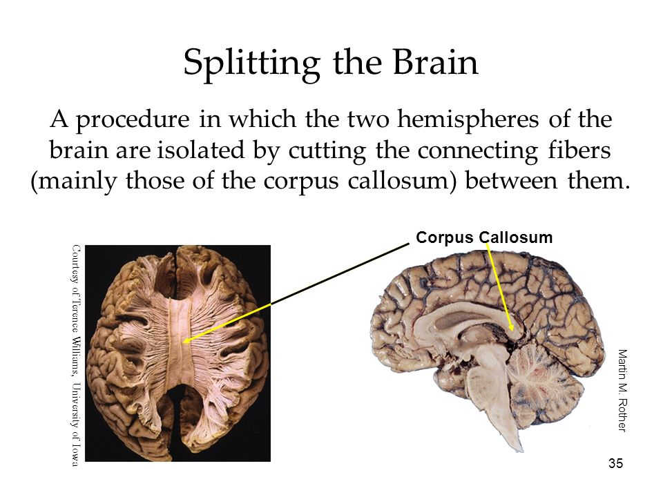 Splitting the Brain