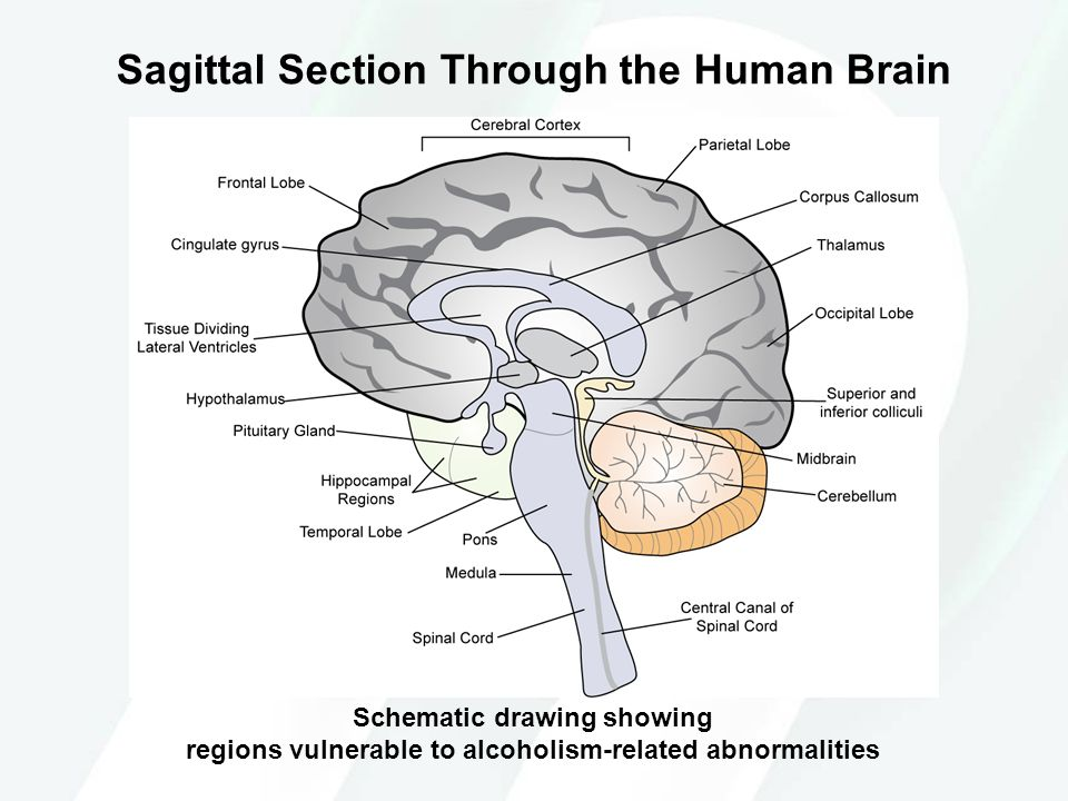 Sagittal Section Through the Human Brain