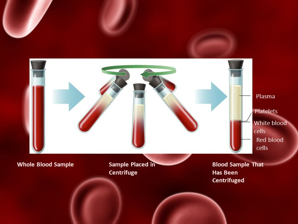 Plasma Platelets. White blood cells. Red blood cells. Whole Blood Sample. Sample Placed in. Centrifuge.