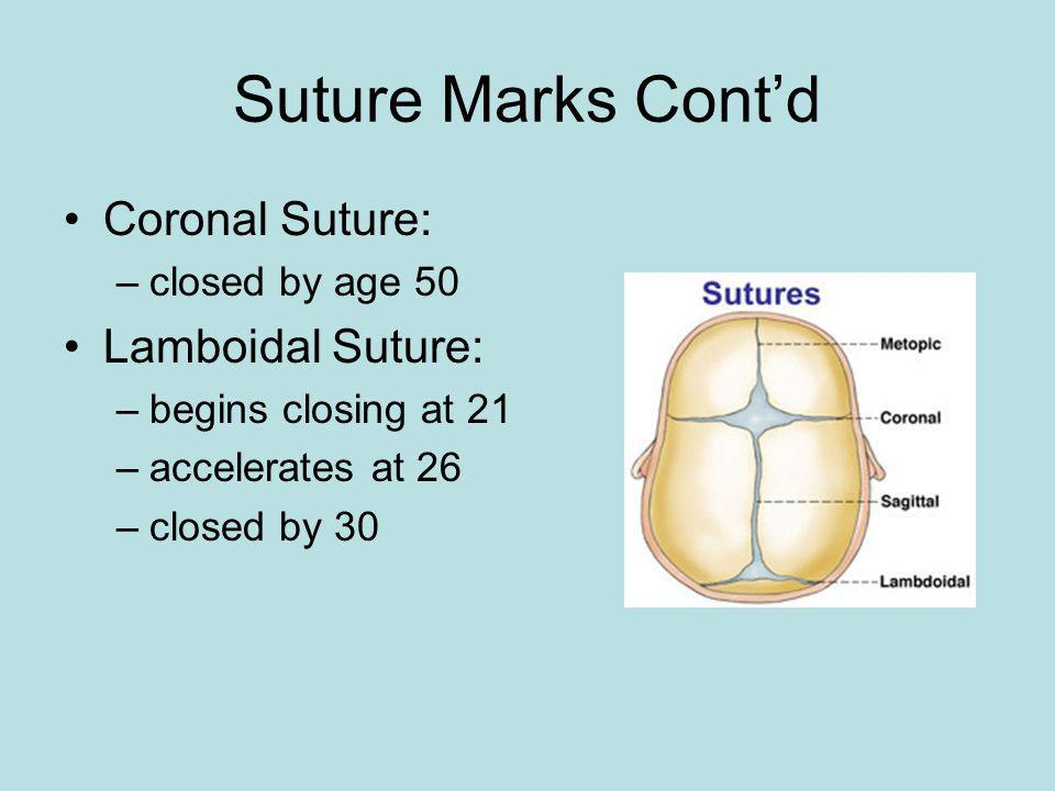 Suture Marks Cont'd Coronal Suture: Lamboidal Suture: closed by age 50