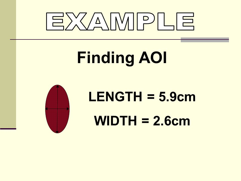 EXAMPLE Finding AOI LENGTH = 5.9cm WIDTH = 2.6cm