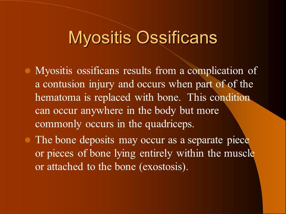 Myositis Ossificans