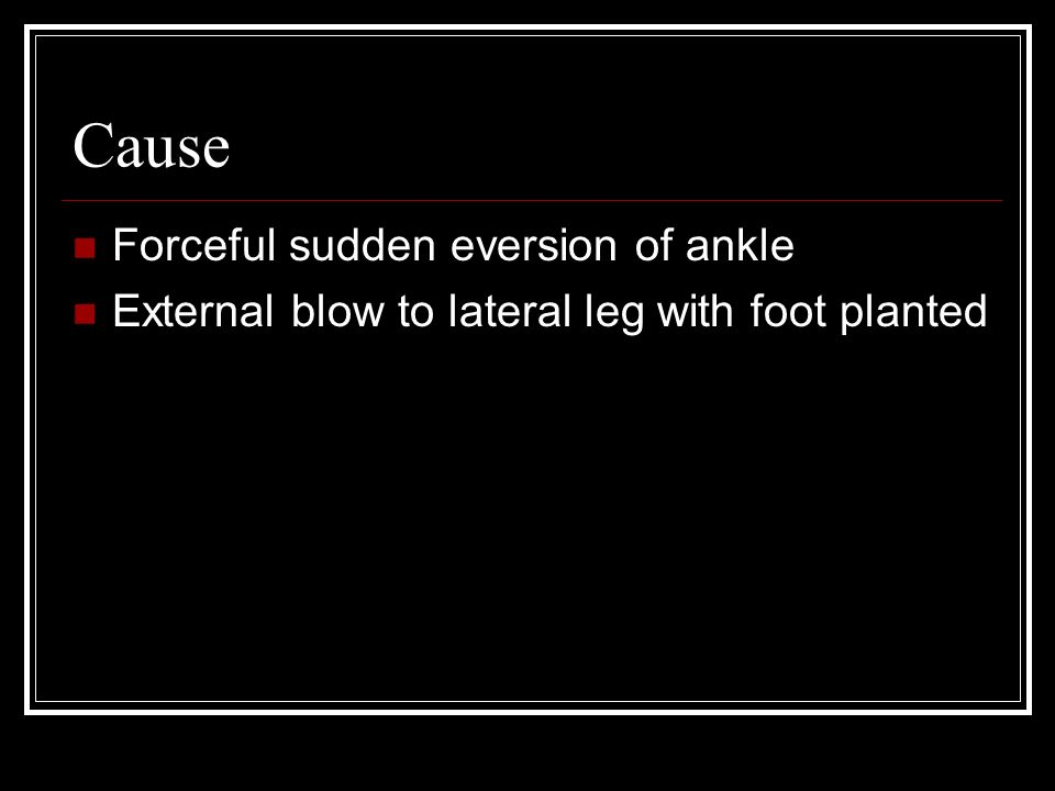 Cause Forceful sudden eversion of ankle