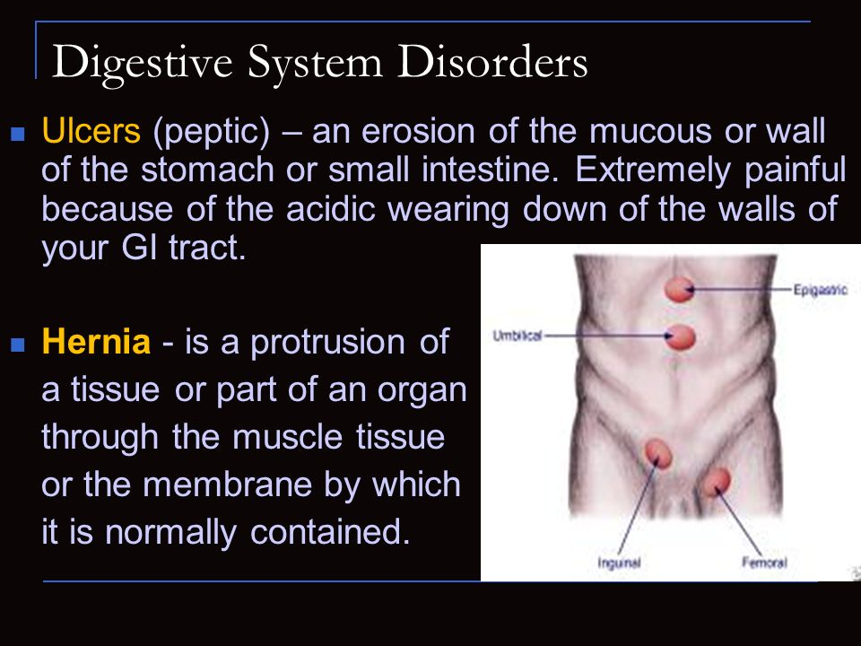 Digestive System Disorders