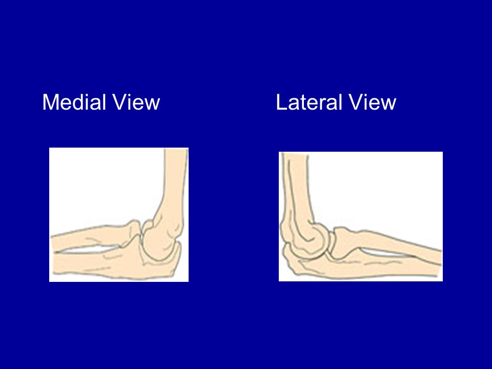 Medial View Lateral View