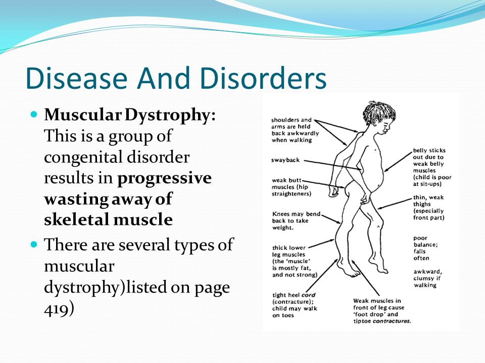 an overview of the muscular dystrophy and a group of muscle diseases Muscular dystrophy is a general name for a group of rare diseases that cause muscle weakness it is caused by mutations in certain genes there are more than 30 different types of muscular dystrophy and each affects certain muscles and varies in severity.
