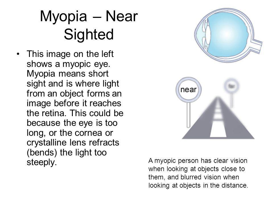 Myopia – Near Sighted