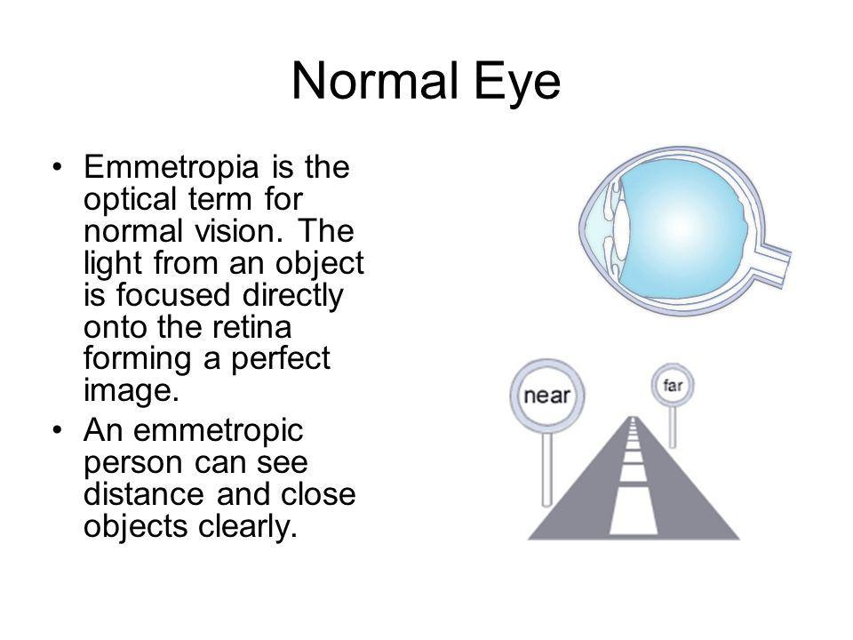 Normal Eye Emmetropia is the optical term for normal vision. The light from an object is focused directly onto the retina forming a perfect image.