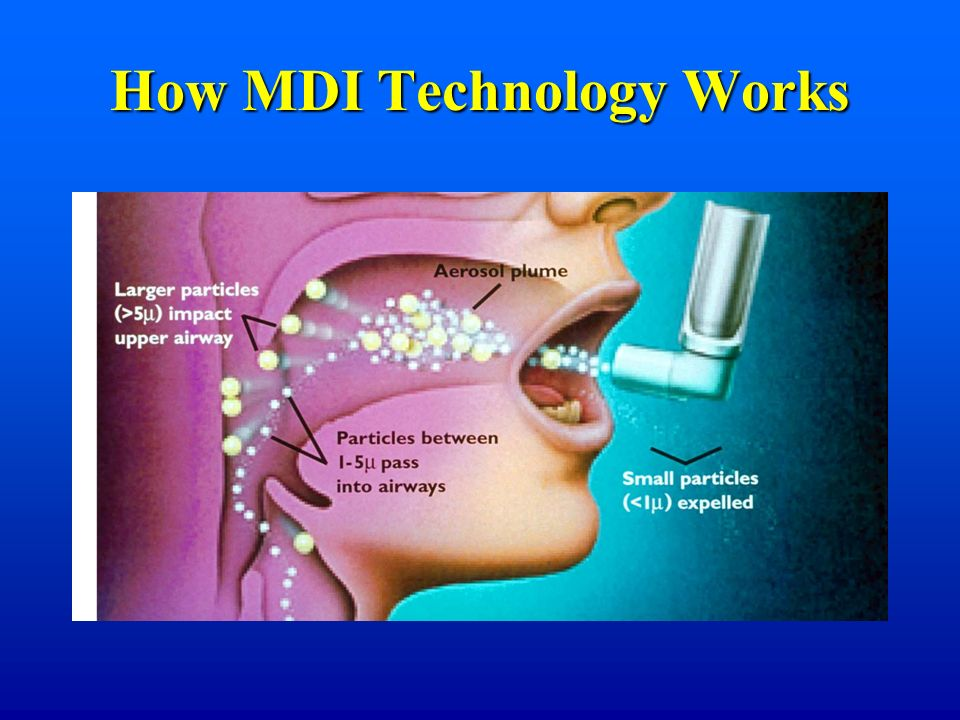 How MDI Technology Works