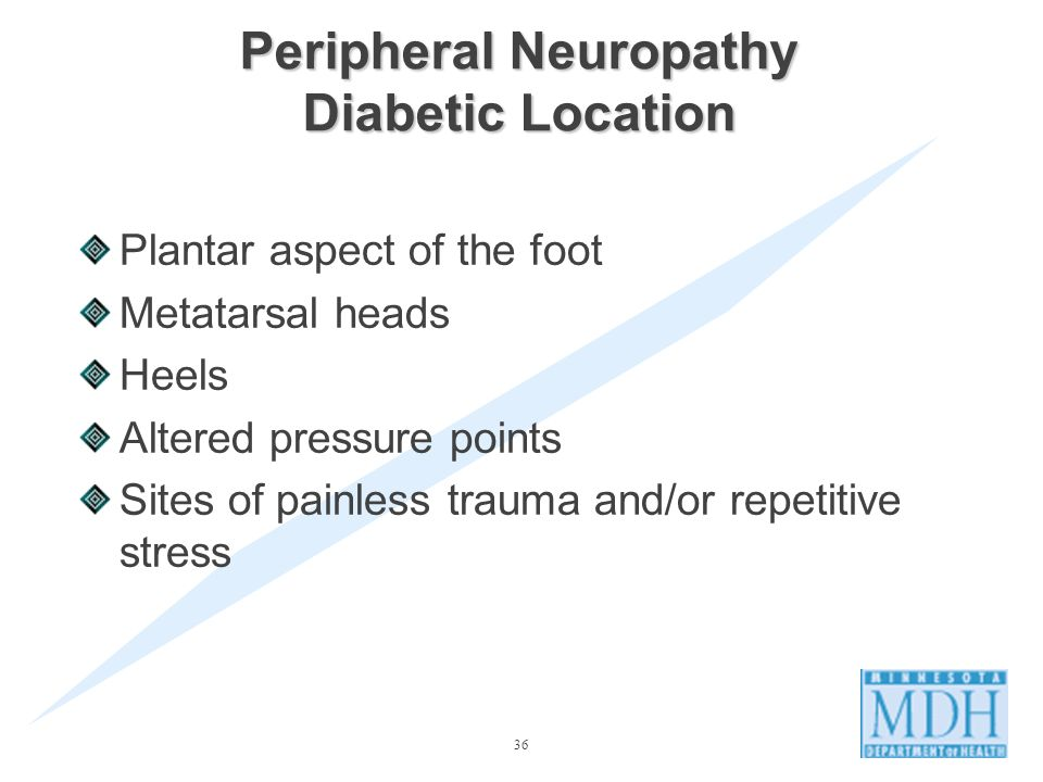 Peripheral Neuropathy Diabetic Location