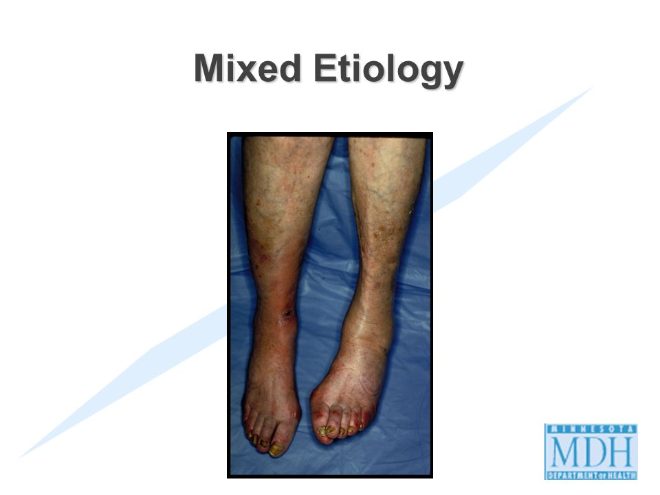 Mixed Etiology