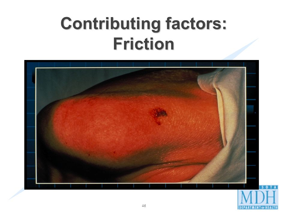 Contributing factors: Friction