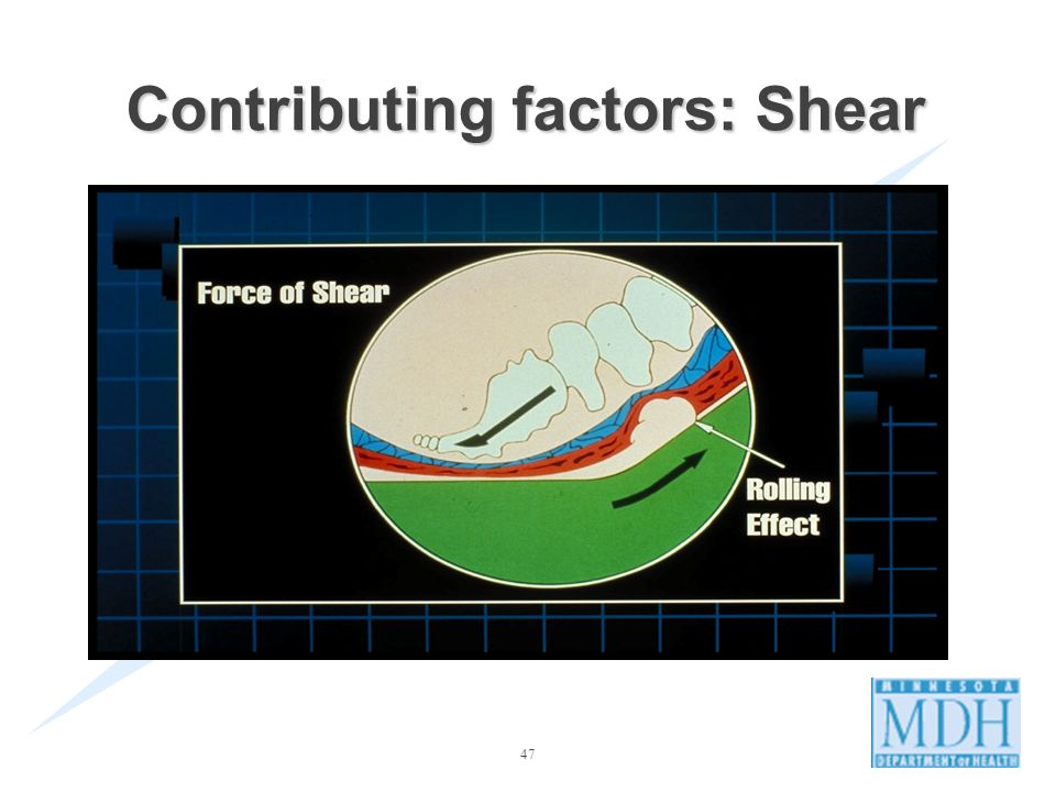 Contributing factors: Shear