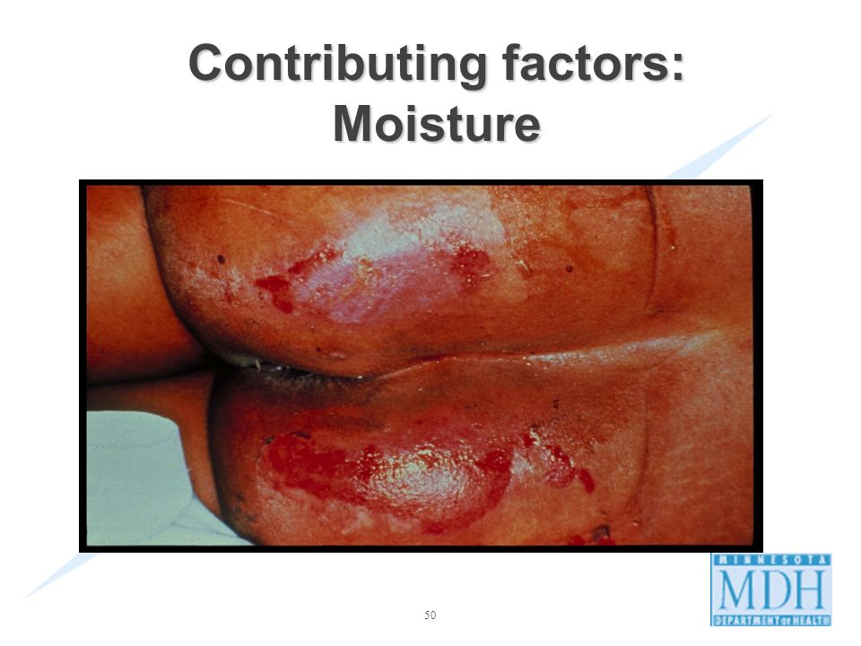 Contributing factors: Moisture