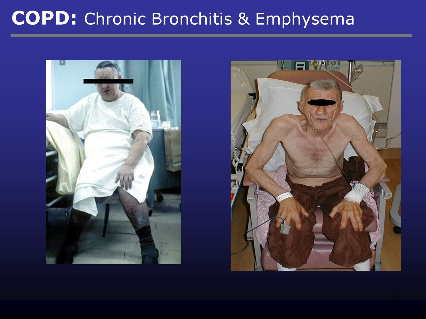 chronic bronchitis and emphysema What is copd chronic obstructive pulmonary disease (copd) is an umbrella term used to describe progressive lung diseases including emphysema, chronic bronchitis, and refractory (non-reversible) asthma this disease is.