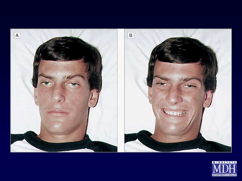 These photographs were taken of a 17-yr old male with mild botulism poisoning. Figure A shows the patient at rest, while Figure B shows the patient giving his maximum smile . The dilated pupils, drooping eyelids, and lack of smile creases around the eyes are consistent with symptoms of botulism.