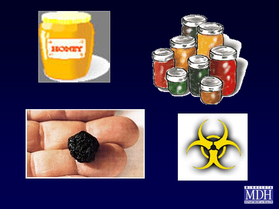 Examples of sources of botulism