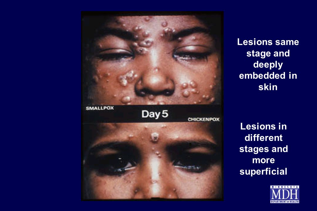 Lesions same stage and deeply embedded in skin