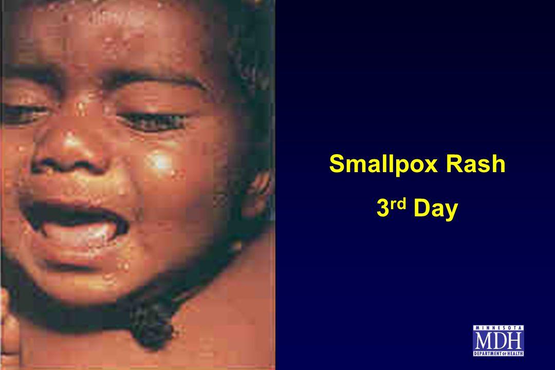 Smallpox Rash 3rd Day.
