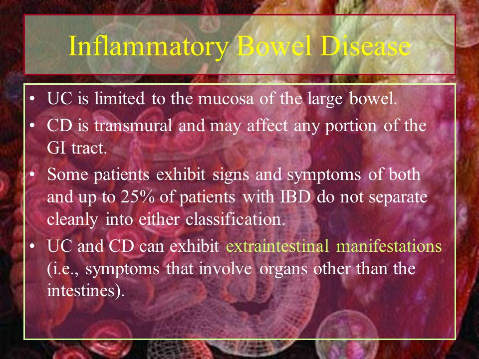 the symptoms and treatment of inflammatory bowel disease Inflammatory bowel disease (ibd) - chronic disorder in which inflammation develops alongsegments of the gastrointestinal tract.
