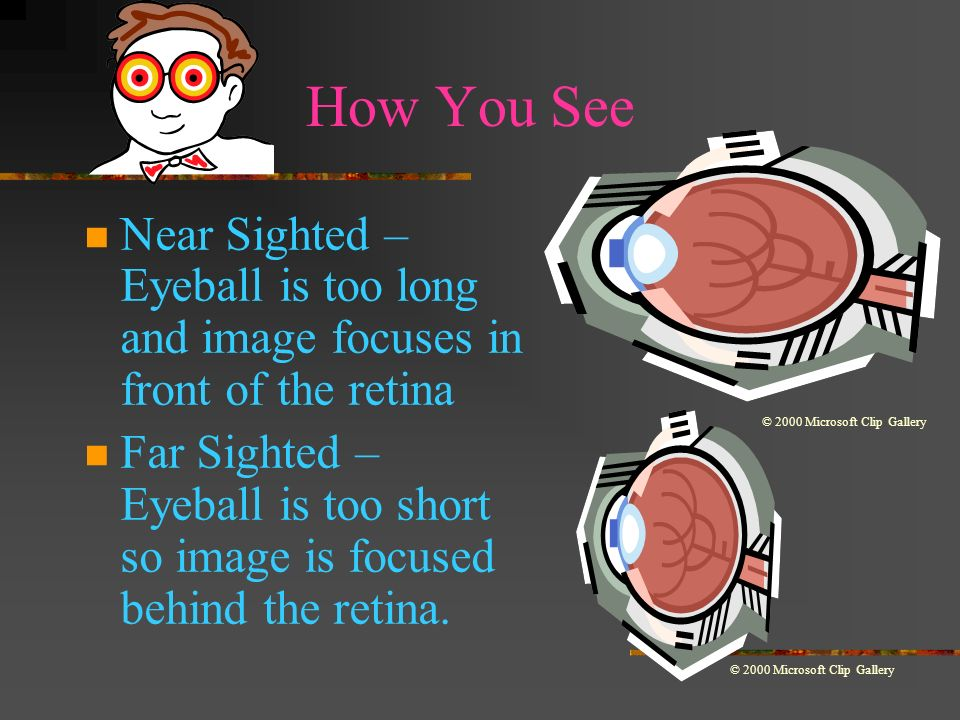How You See Near Sighted – Eyeball is too long and image focuses in front of the retina.