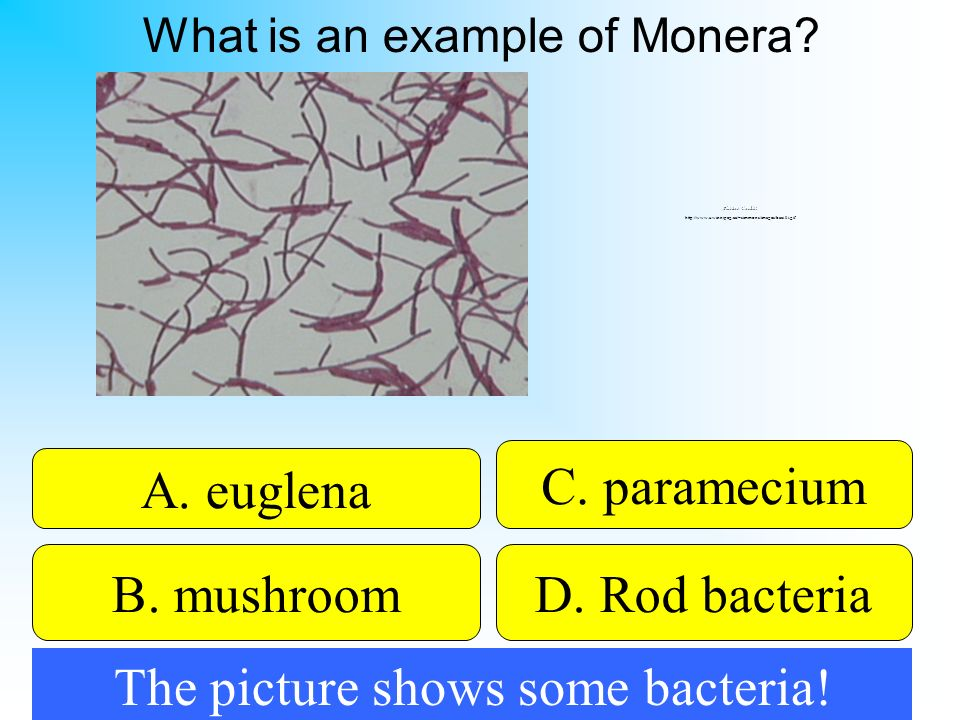 The picture shows some bacteria!