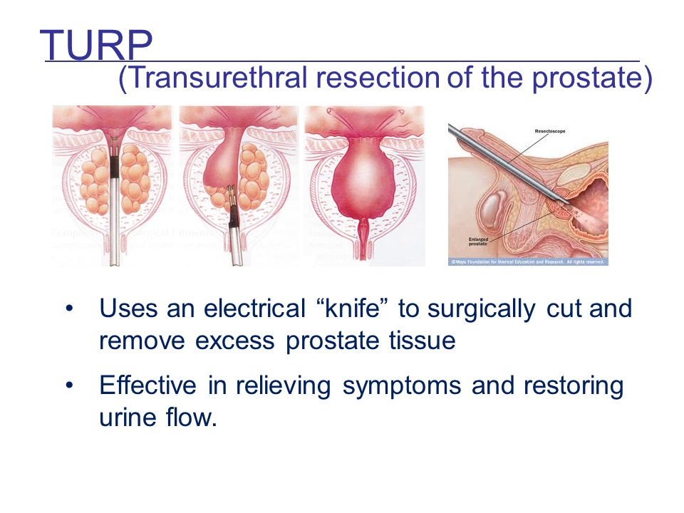 Laser Knife Surgery Prostate Smart Surgical Knife Detects