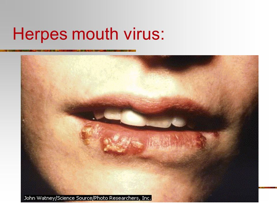 Herpes mouth virus: