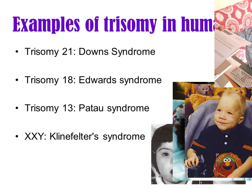 Examples of trisomy in humans