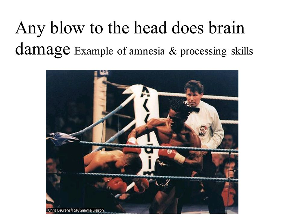 Any blow to the head does brain damage Example of amnesia & processing skills