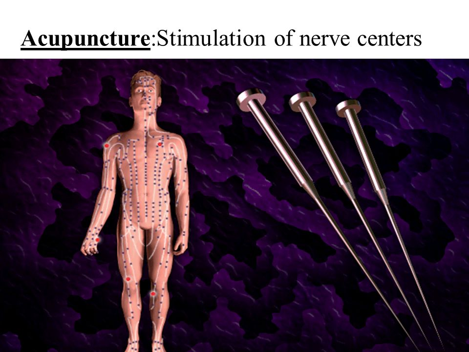 Acupuncture:Stimulation of nerve centers