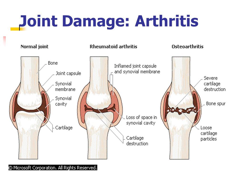 Joint Damage: Arthritis