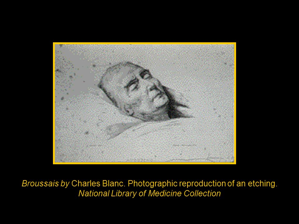 Broussais by Charles Blanc. Photographic reproduction of an etching