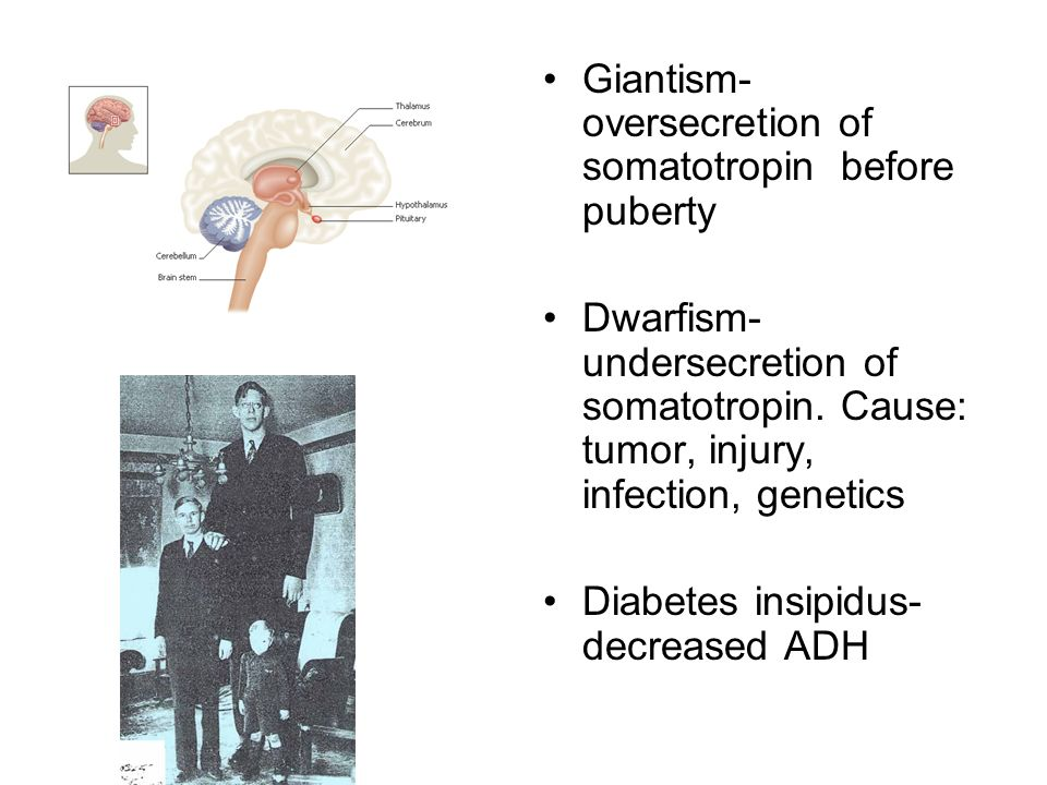 Giantism- oversecretion of somatotropin before puberty