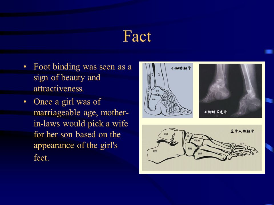 Fact Foot binding was seen as a sign of beauty and attractiveness.