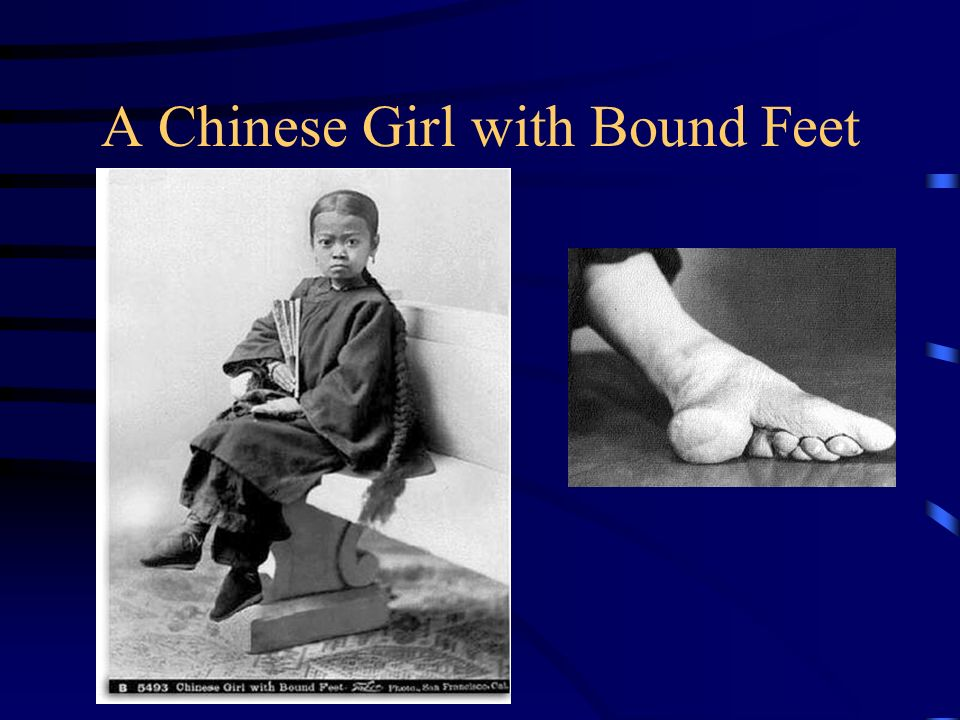 A Chinese Girl with Bound Feet