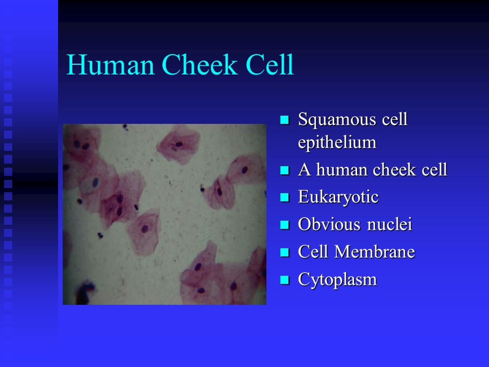 Human Cheek Cell Squamous cell epithelium A human cheek cell