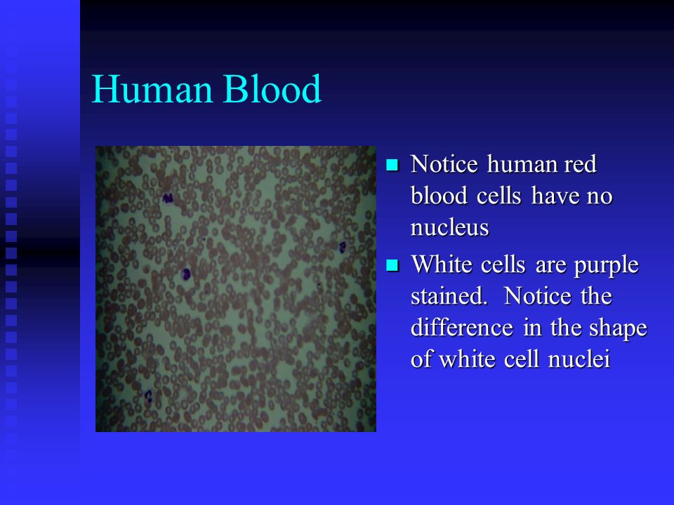 Human Blood Notice human red blood cells have no nucleus