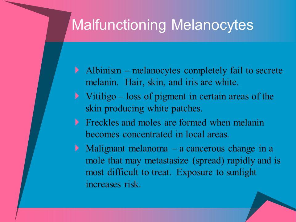 Malfunctioning Melanocytes