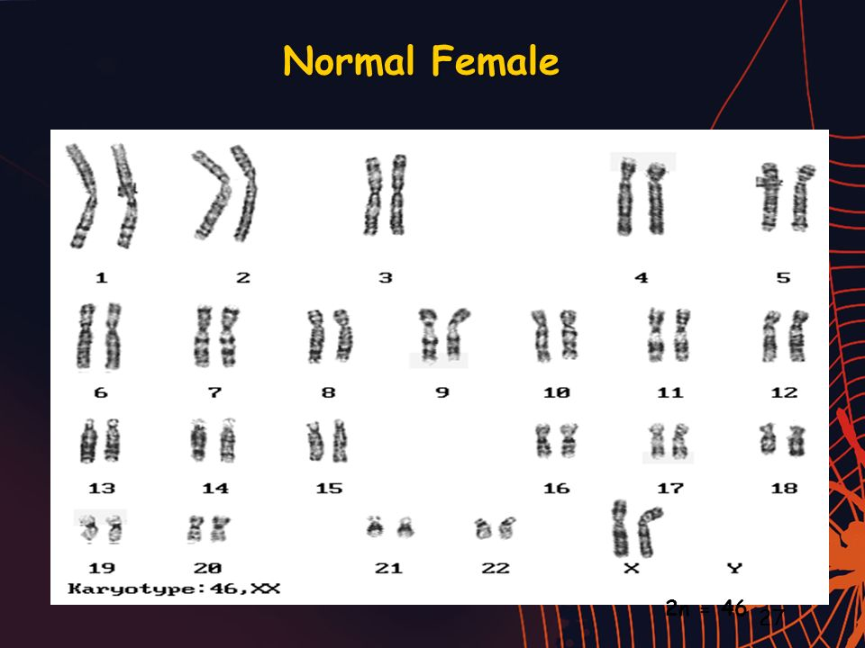 Normal Female 2n = 46