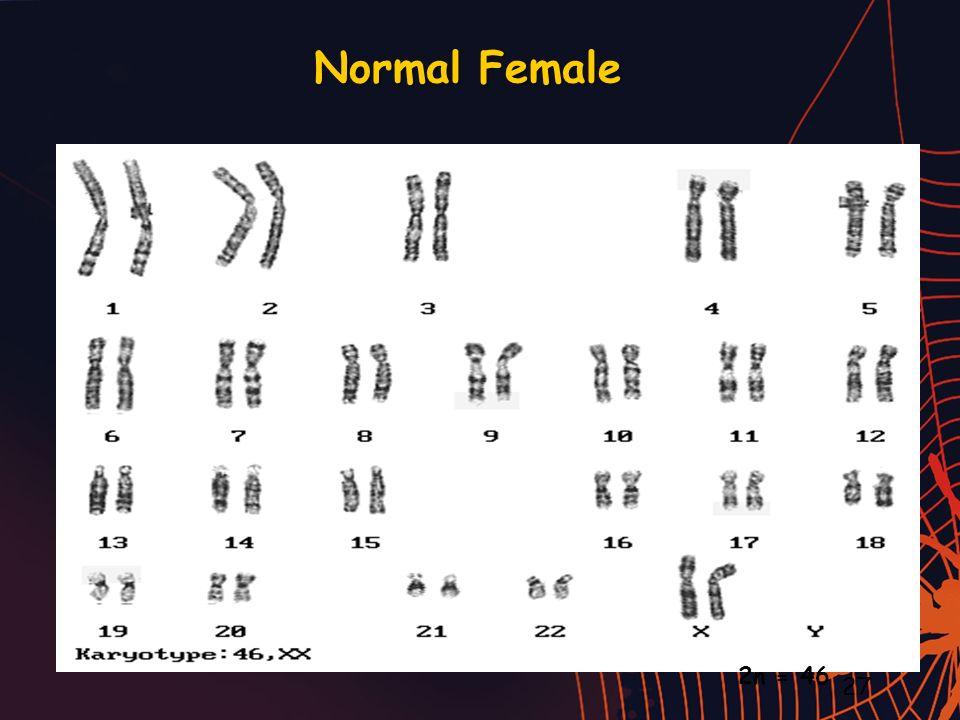 Normal Female 2n = 46