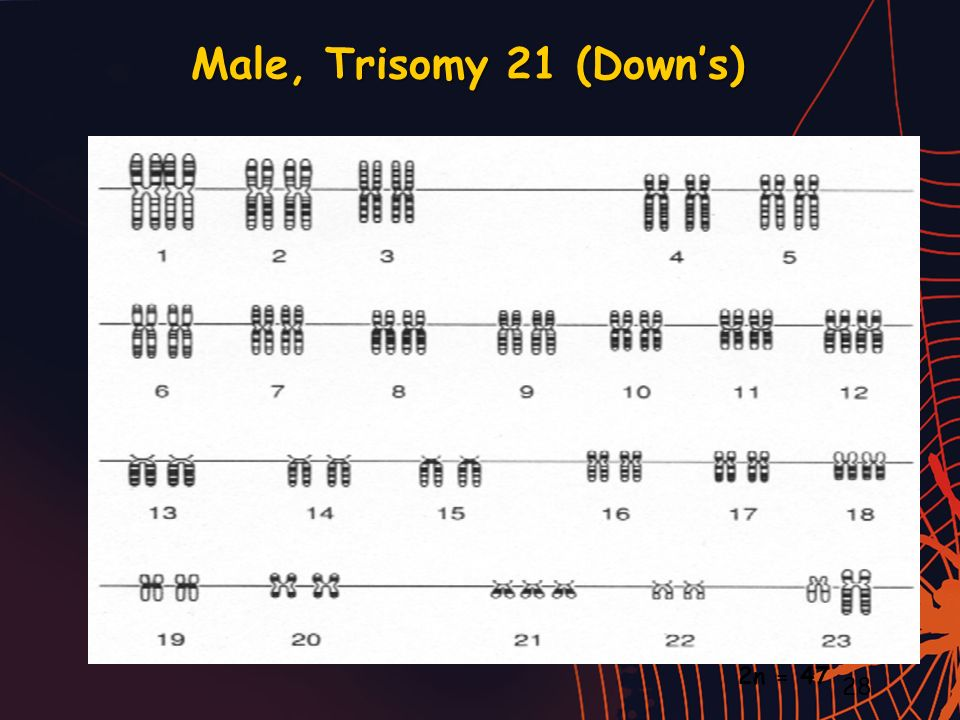 Male, Trisomy 21 (Down's) 2n = 47