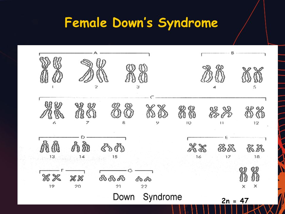 Female Down's Syndrome
