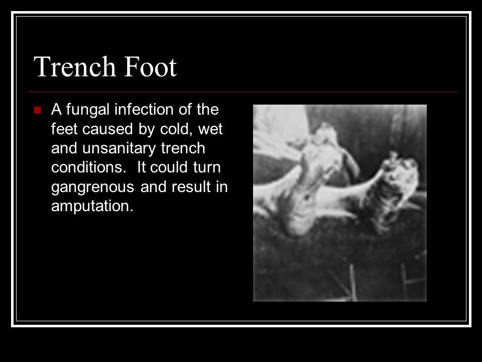 Trench Foot A fungal infection of the feet caused by cold, wet and unsanitary trench conditions. It could turn gangrenous and result in amputation.