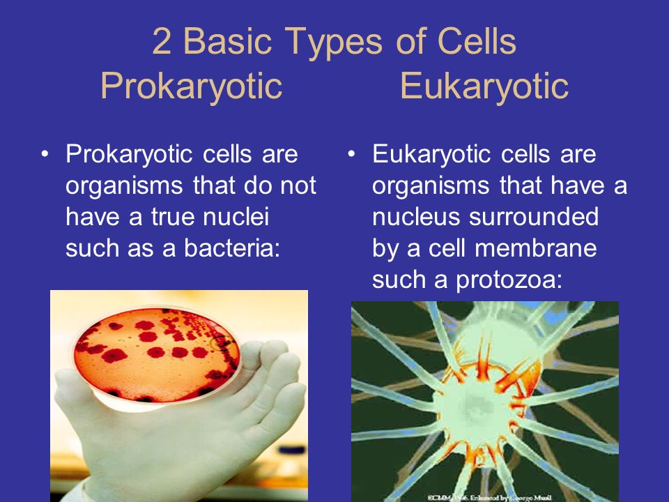 2 Basic Types of Cells Prokaryotic Eukaryotic