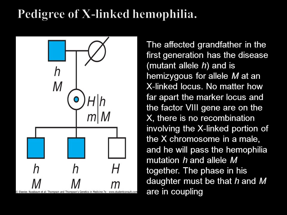 Pedigree of X-linked hemophilia.