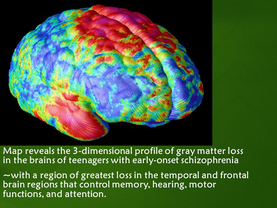 Map reveals the 3-dimensional profile of gray matter loss in the brains of teenagers with early-onset schizophrenia
